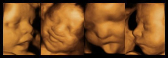 cropped-cropped-cropped-cropped-4D-Ultrasound-Scan-Header-Image-1.jpg